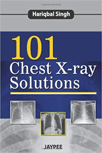 101 Chest X ray Solutions 1 ED by Hariqbal Singh 9350904624