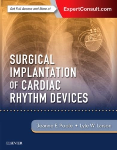 Surgical Implantation of Cardiac Rhythm Devices 1 ED by Jeanne Poole 0323401260