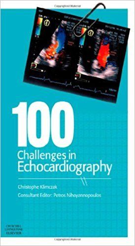 100 Challenges in Echocardiography 1 ED by Christophe Klimczak 9780443069277